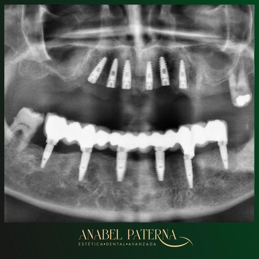 implentes dentales radiografía