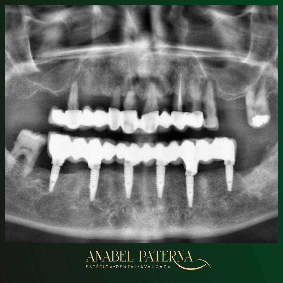 Implante dental radiografía