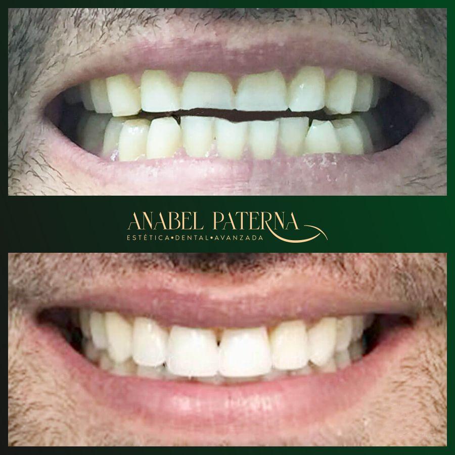 Sonrisa Antes y Después