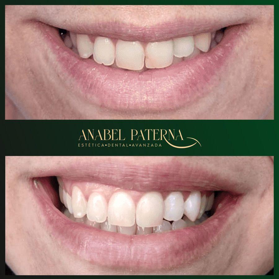 Antés y después carillas composite sonrisa